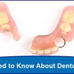 All You Need to Know About Denture Repairs
