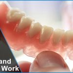 What Are Digital Dentures and How They Work