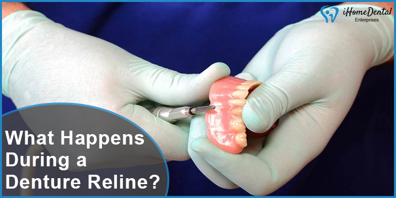 What Happens During a Denture Relin