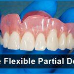 What are Flexible Partial Dentures