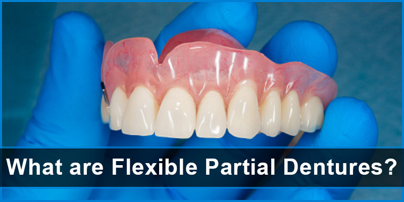 What are Flexible Partial Dentures