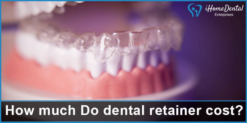 How much Do dental retainer cost