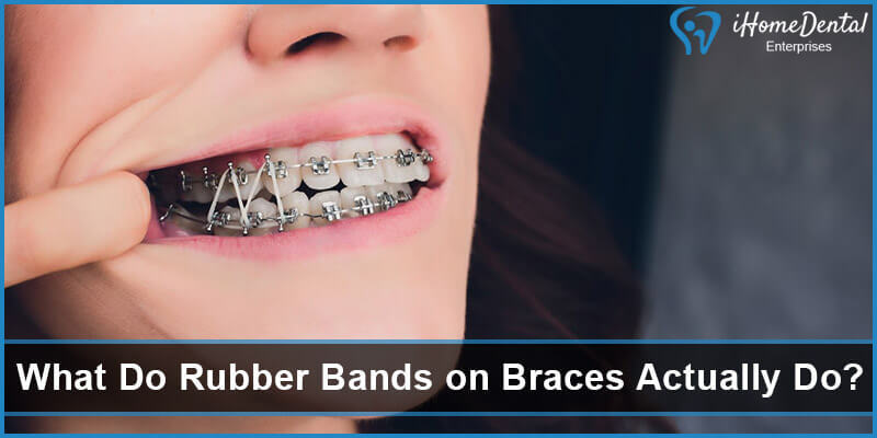 What Do Rubber Bands on Braces Actually Do