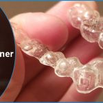 What to do when your dental retainer cracks