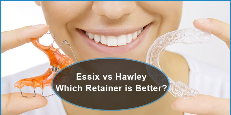 essix versus hawley which retainer is better