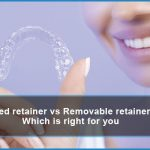 fixed retainer vs removable retainer which is right for you