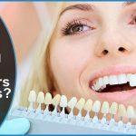 will teeth whitening gel work on veneers or crowns