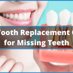 8 Best Tooth Replacement Options for Missing Teeth