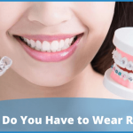 How Long Do You Have to Wear Retainers