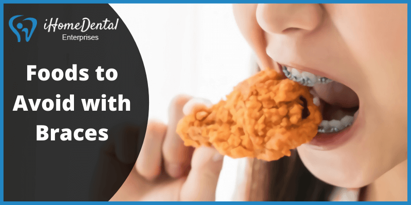 Foods to Avoid with Braces