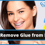 How to Remove Glue from Braces